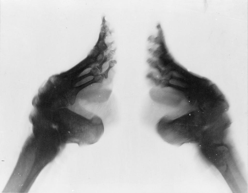 zdjęcie rentgenowskie skrępowanych stóp